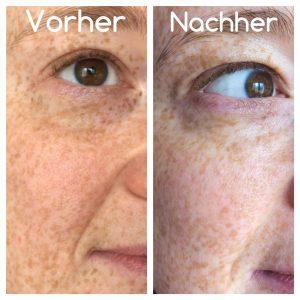 An diesem Bild sieht man deutlich, wie sich die Nasolabialfalte ebnet und die Augenringe, sowie kleine Augenfältchen sich glätten