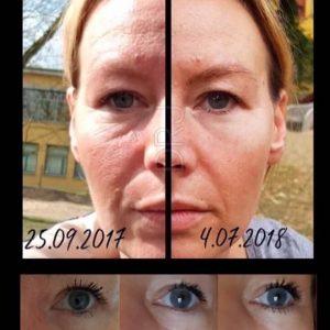 Mit der Kosmetik von Dr. Juchheim verbessert sich ihr Hautbild jeden Tag.