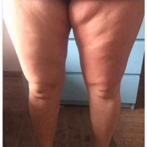 bei 2 monatiger Anwendung verbessert sich ihr Hautbild, Hautdellen ebnen sich, die Haut wird straffer.