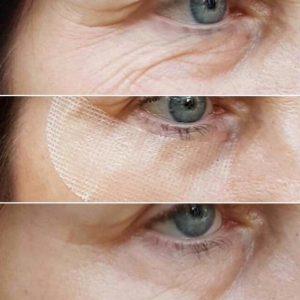 Diese Eyepatches werden 20-30 Min. getragen und zeigen einen Sofort-Cinderella-Effekt